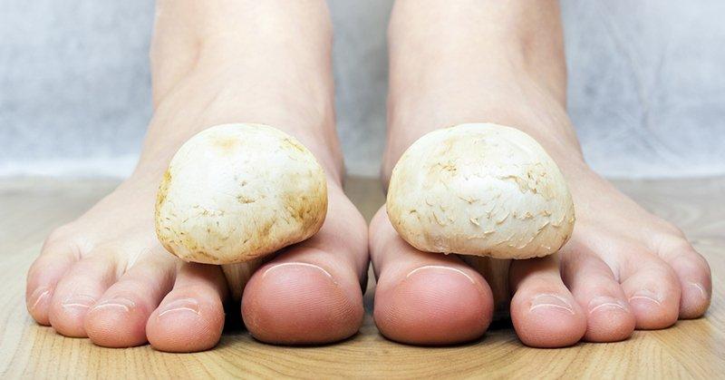 Основные симптомы, причины и лечение грибка на ногах