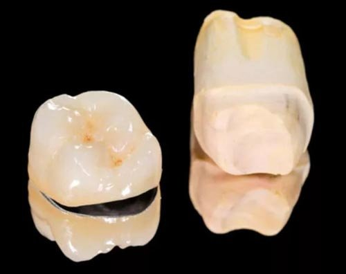 Нейлоновые зубные протезы: отзывы и цены