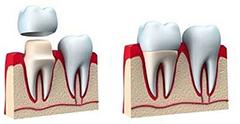 Какие протезы зубов лучше поставить. сравнение особенностей, отзывы, цены
