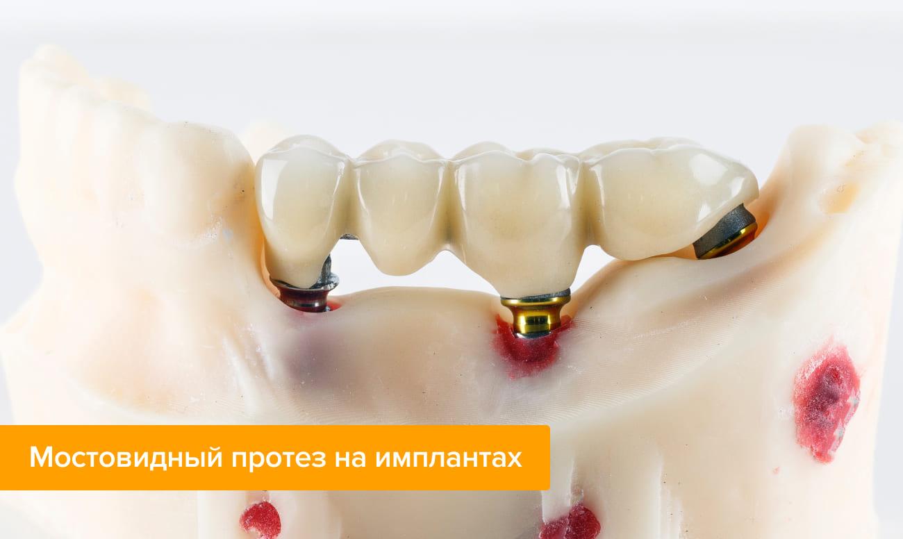 Рейтинг топ 7 лучших съемных зубных протезов: какой крем для фиксации к ним купить, отзывы, цены