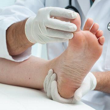 Лечим грибок на ногах: как вылечить, избавиться от микоза стопы быстро, эффективные препараты
