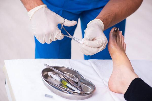 Лечение микоза ног с помощью эффективных препаратов и народных средств
