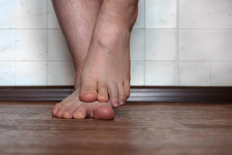 чем вылечить грибок на ногах