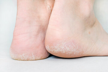 Схема лечения грибка на ногах: комплексная терапия с препаратами