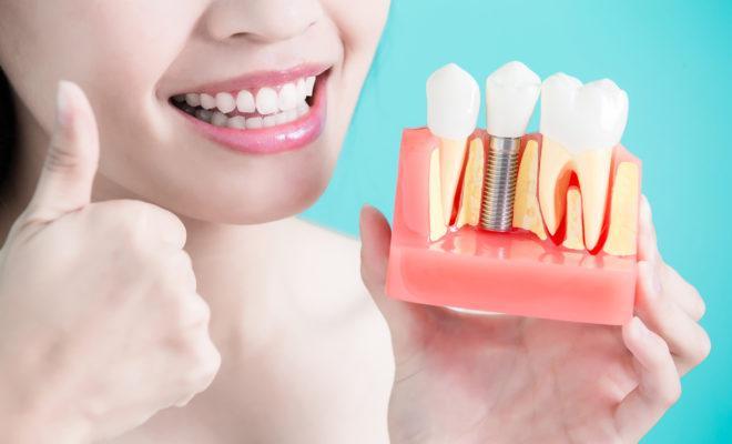 Лучшие зубные протезы по мнению стоматологов
