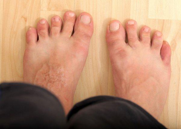 Микоз | грибок на ногах | чем опасен грибок ногтей и кожи стопы, виды и причины