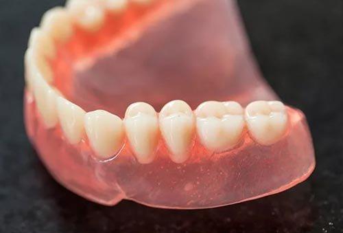 Лучшие зубные протезы – виды, описание, особенности фиксации и ухода современных конструкций