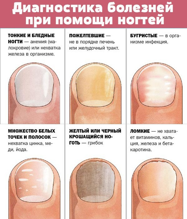 Лечение грибка на ногах народными средствами