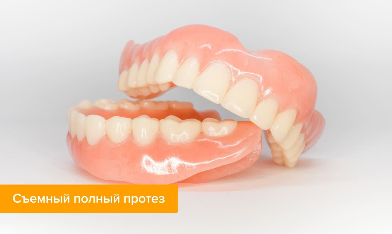 Съемные зубные протезы: виды вставной челюсти и частичные конструкции, какие лучше?