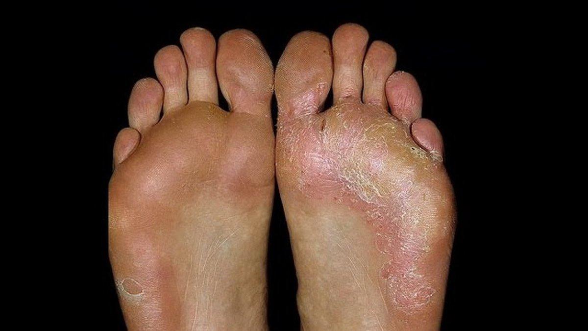 Как быстро вылечить грибок ногтей на ногах в домашних условия медикаментозными и народными средствами