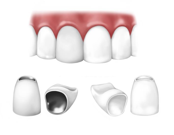 Самые надежные зубные протезы